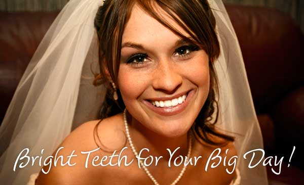 Wedding Teeth Whitening Special